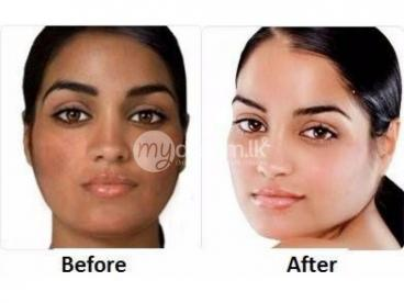 SKIN BLEMISHES CLEARING CREAM +27783431987 in Zambia